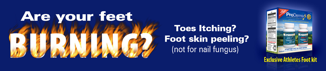 Are your feet burning?